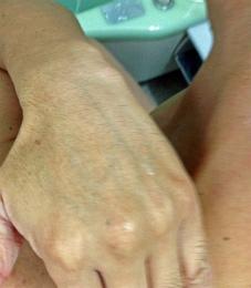 インナードライ肌 隠れ乾燥肌
