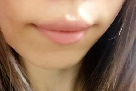 口周りの乾燥 保湿対策