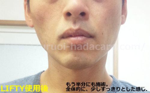 エステナードリフティ 顔全体を施術した効果 引き上げと潤いを実感