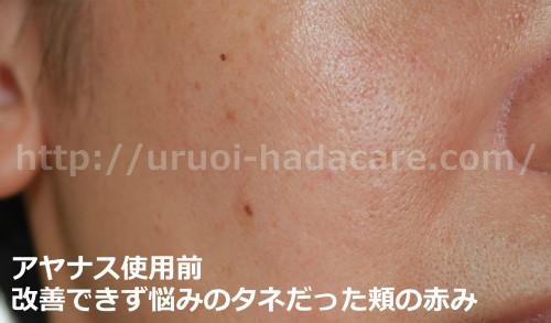 新アヤナスの効果 頬の赤み改善 使用前