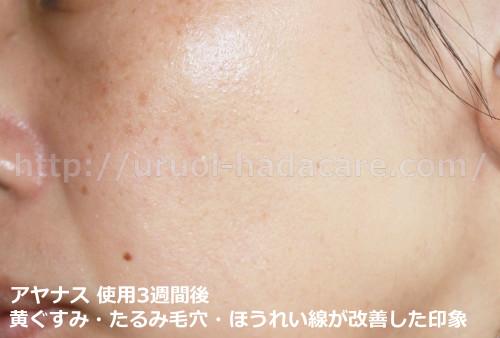アナヤスエッセンスコンセントレート 3週間後 たるみ毛穴・黄ぐすみ・ほうれい線改善