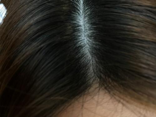 頭皮の乾燥 日焼け フケ おすすめのシャンプー